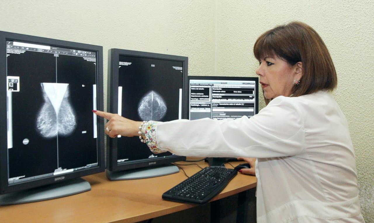 En su etapa inicial el cáncer de mama no presenta signos ni síntomas