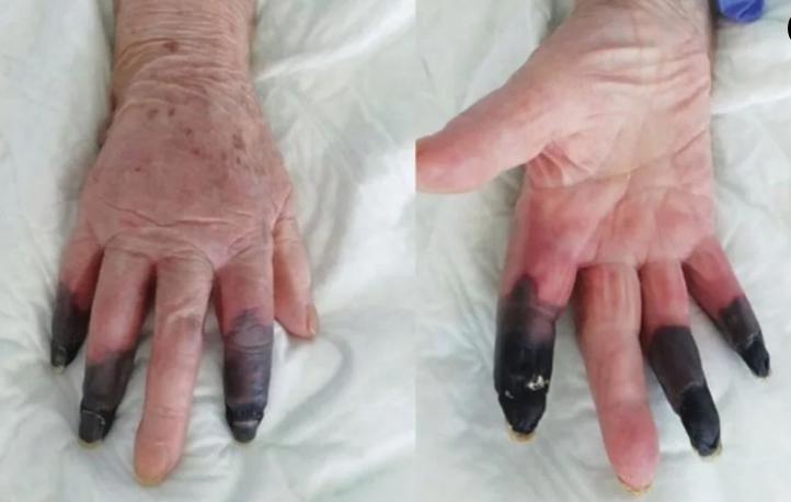 Una mujer sufrió de gangrena tras detectarle Covid