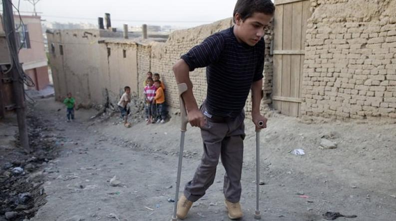 Niño con poliomielitis